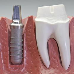 implantes dentales los palacios